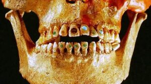 1,600-Year-Old Elongated Skull with Stone-Encrusted Teeth Found in Mexico Ruins